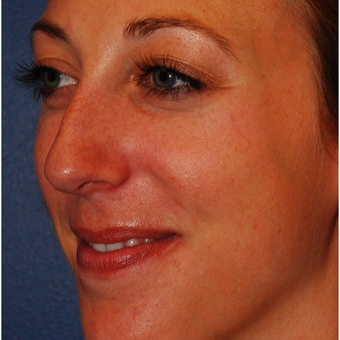 25-34 year old woman treated with Rhinoplasty before 3624329