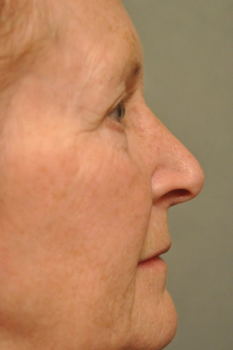 66 year old female treated for sun damage and wrinkles 927780