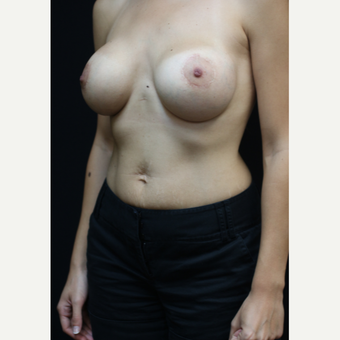 25-34 year old woman treated with Breast Augmentation after 3383201