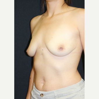 25-34 year old woman treated with Breast Augmentation before 3383201