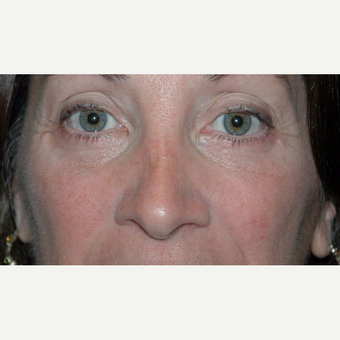 44 year old woman treated with Eyelid Surgery after 3710581