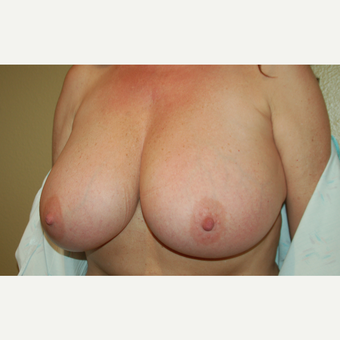45-54 year old woman treated with Breast Reduction before 3799051