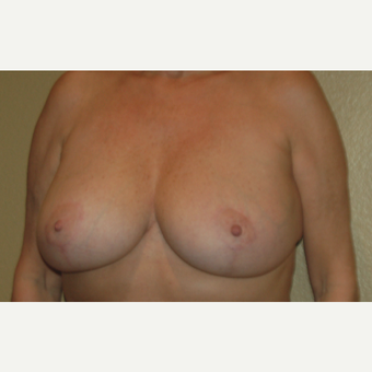 45-54 year old woman treated with Breast Reduction after 3799051