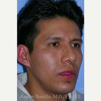 29 year old man treated with Rhinoplasty after 3460974