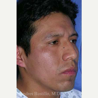 29 year old man treated with Rhinoplasty before 3460974