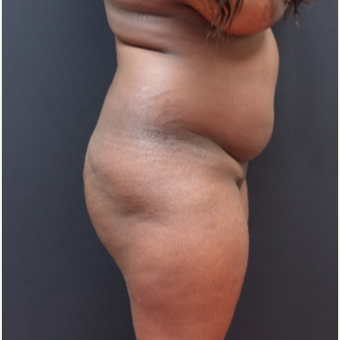 25-34 year old woman treated with Fat Transfer before 3363862