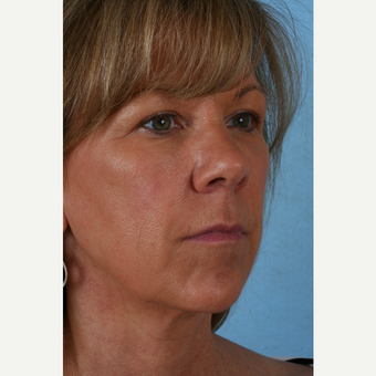55-64 year old woman treated with Facelift before 3054990