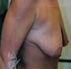 Breast Augmentation before 1989688