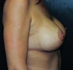 Breast Augmentation after 1989688