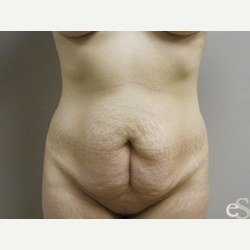 Tummy Tuck before 3484773