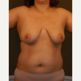 35-44 year old woman treated with Mommy Makeover before 3424167