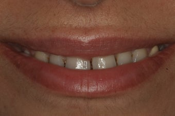 Smile Makeover with 8 Porcelain Veneers before 206796