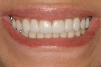 Smile Makeover with 8 Porcelain Veneers after 206796