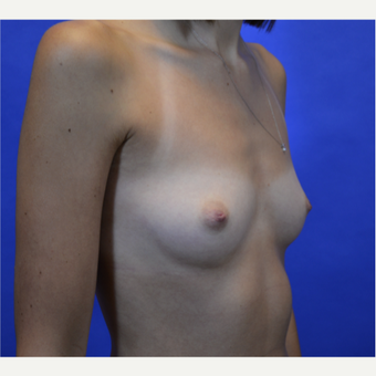 35-44 year old woman treated with Breast Augmentation before 3579939