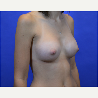35-44 year old woman treated with Breast Augmentation after 3579939