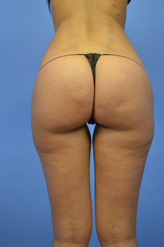 VASERSmooth Cellulite Treatment 1116720