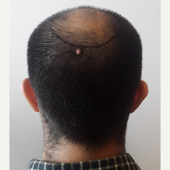 18-24 year old man treated with FUE Hair Transplant before 3729988