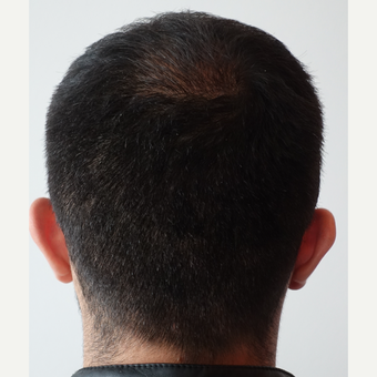 18-24 year old man treated with FUE Hair Transplant after 3729988