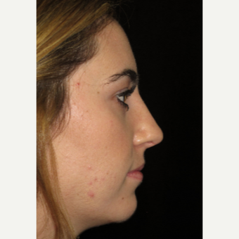 Scarless Closed Rhinoplasty after 3586229