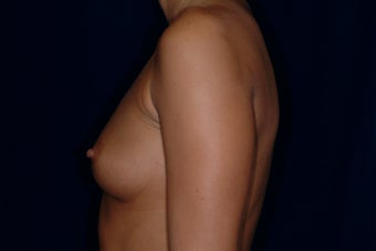 Breast Augmentation 336266