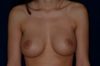 Breast Augmentation after 336266
