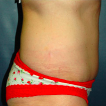 59 year old woman treated with Tummy Tuck after 3578510