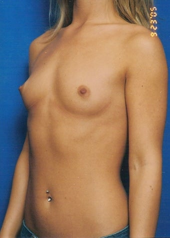 Breast Augmentation Case before 731275