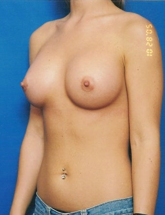 Breast Augmentation Case after 731275