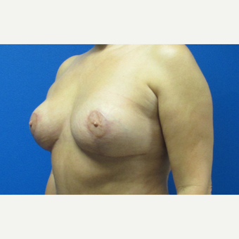 44 year old woman Breast Lift after 3703043