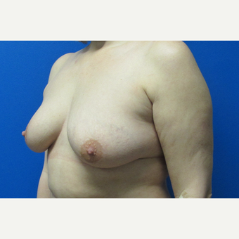44 year old woman Breast Lift before 3703043