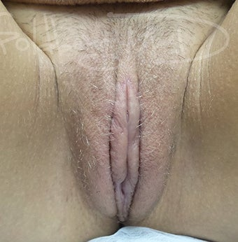 18-24 year old woman treated with Labiaplasty after 3365862