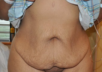 35-44 year old woman treated with Tummy Tuck before 3603312