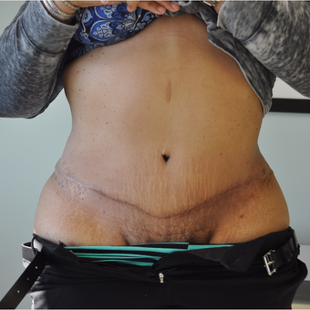 35-44 year old woman treated with Tummy Tuck after 3603312