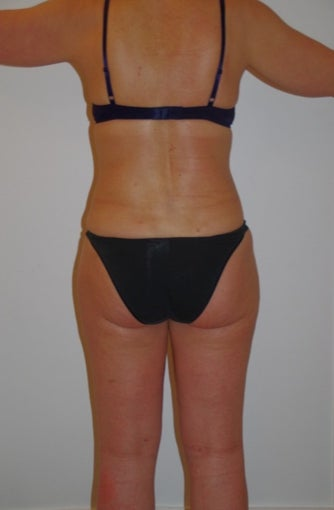 57 years old woman treated with Liposuction after 1568044