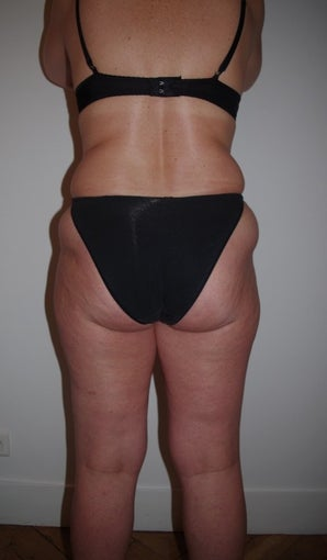 57 years old woman treated with Liposuction before 1568044