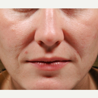35-44 year old woman treated with Juvederm before 1569351