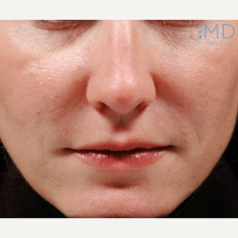 35-44 year old woman treated with Juvederm after 1569351