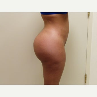 18-24 year old woman treated with Brazilian Butt Lift after 1831614