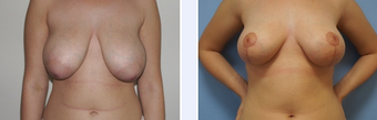 24 Year Old Female Breast Uplift Patient before 1346636