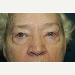 Eyelid Surgery before 3720159