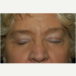 Eyelid Surgery after 3720159