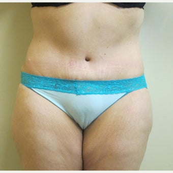 45-54 year old woman treated with Tummy Tuck Revision after 2618764