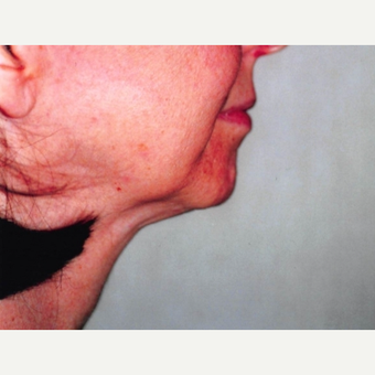 55-64 year old woman treated with Neck Lift before 3764489
