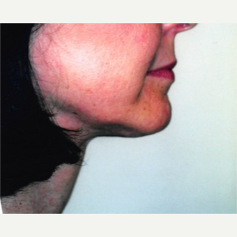 55-64 year old woman treated with Neck Lift after 3764489