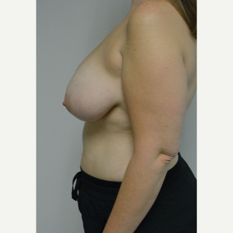 25-34 year old woman treated with Breast Reduction before 3141064