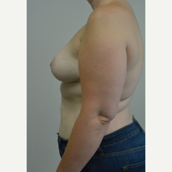 25-34 year old woman treated with Breast Reduction after 3141064