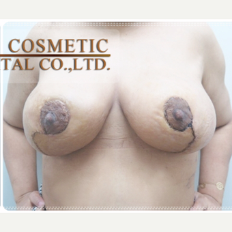 35-44 year old woman treated with Breast Lift after 3649024