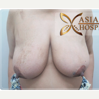 35-44 year old woman treated with Breast Lift before 3649024