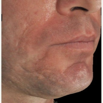 35-44 year old man treated with Infini for Acne Scars Treatment before 1883875