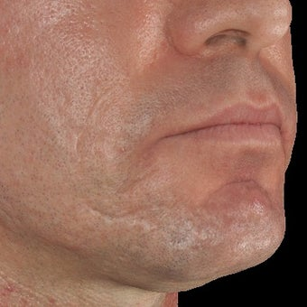 35-44 year old man treated with Infini for Acne Scars Treatment after 1883875